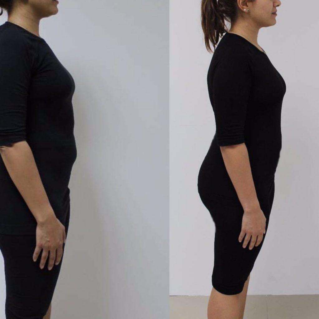 In Body 770 Results